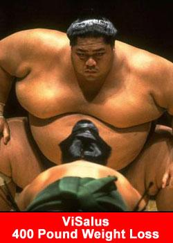 ViSalus 400 Pound